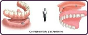 overdenture and ball abutment