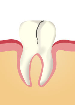 tooth_extraction-A Crack Running Towards The Centre Of The Tooth