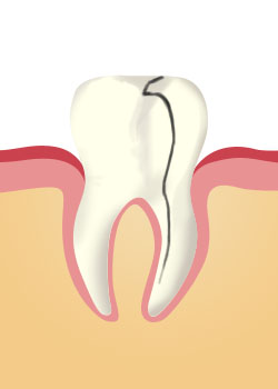 tooth_extraction-A Split Tooth