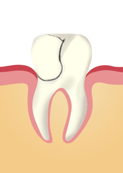 tooth_extraction_Fractured Cusp