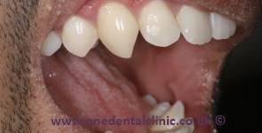 Tooth Recontouring in Solihull | One Dental & Implant Clinic