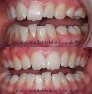 Lingual Braces One Dental Amp Implant Clinic Dorridge