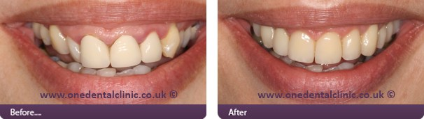 Can Invisalign Correct A Gummy Smile?   One Dental & Implant