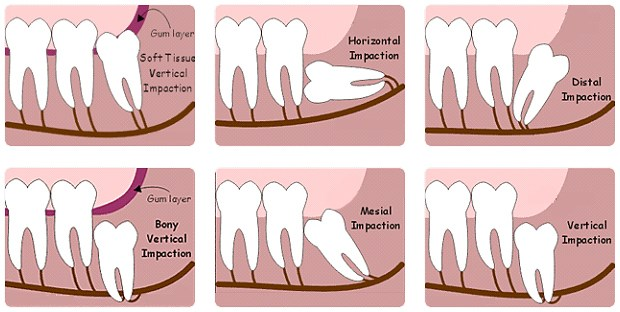 Where To Get Wisdom Teeth Removal In Birmingham | One ...